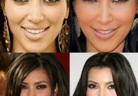 #kardashian #plastic #surgery #facial #before #after