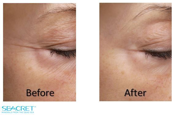 Results using Seacret , Recovery order @ http://www.seacretdirect.com/jacklynndon