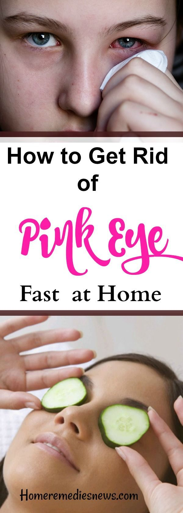 How to Get Rid of Pink Eye fast at home -  Pink eye (also known as conjunctivitis) is an irritating, annoying infection of the outermost layer of the eye itself. The infection may be bacterial or viral in nature, but it does spread quickly through pollen and other allergic substances.   Pink eye, conjunctivitis, Symptoms:  Feeling of burning sensation in the eyes Slight pain and soreness in the conjunctiva, Excessive tearing Redness in the white of the eyes, Yellow-green oozing or drainage…