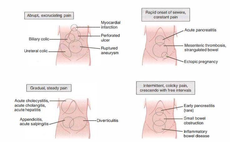 AcuteAbdomenPng   Anatomy    Physician