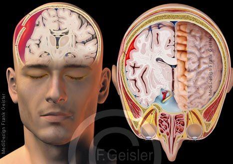 Blutung bei Schädel-Hirn-Trauma SHT, Schädeltrauma und Hirndruck durch Hirnblutung bei Schädel-Hirn-Verletzung durch Schädelfraktur; Hirnblutung bei Schädeltrauma