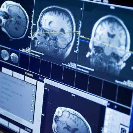 Radiation therapy chemotherapy combination improves survival in adults with low-grade brain cancer.