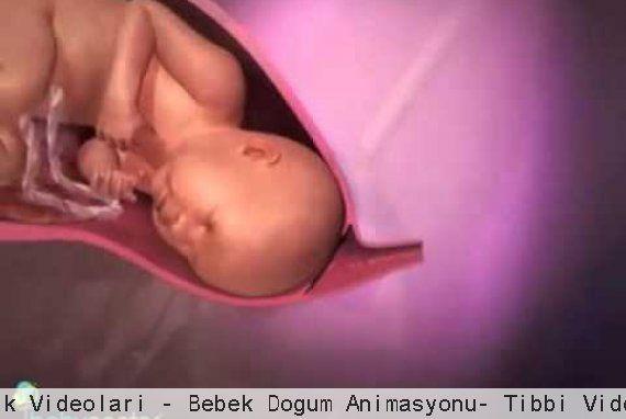 Sağlık Videoları - Bebek Doğum Animasyonu- Tıbbi Videolar