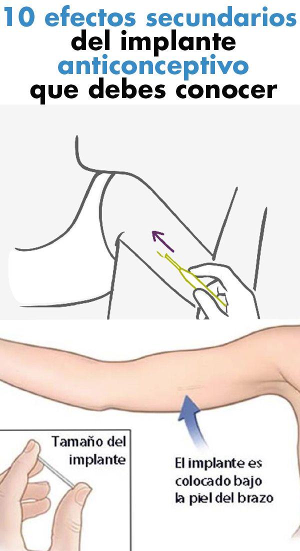 efectos secundarios del anticonceptivo implante