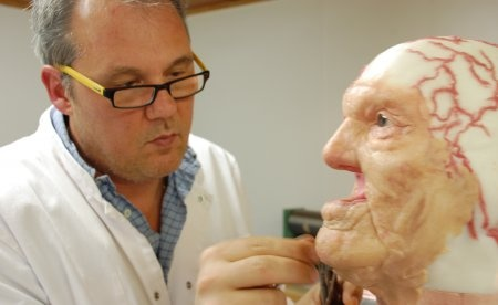 Anaplastology model presented by Jan De Cubber, CCE Zaventem, Belgium | Cranio-Maxillofacial