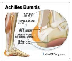 Achilles Bursitis - the most common bursa to be inflamed in the foot is the retrocalcaneal bursa (also referred to as the subtendinous calcaneal bursa). #anklebursa
