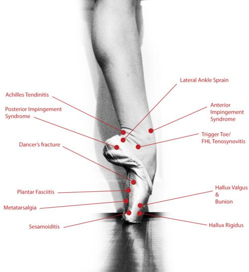 """Feeling some pain? The foot has the largest number of bones in comparison to the rest of the body and so is very prone to many injuries. Here are some of the many injuries dancers experience that result from pointe shoes and the other rigors of ballet.Sesamoiditis - """"I have pain underneath my big toe, particularly while walking without shoes.""""Hallux Valgus and Bunion - """"My big toe points inward and is painful.""""Hallux Rigidus - """"I have pain with full releve.""""Pl"""