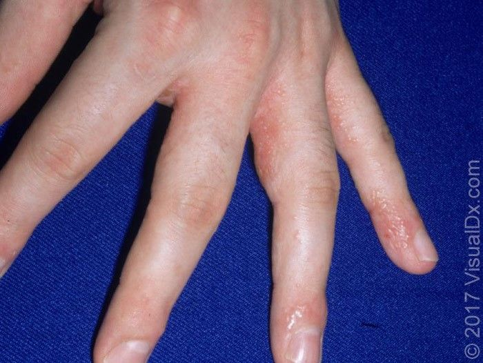 Dyshidrotic Eczema Aka Itchy Hands And Feet Healthy Skin Clinic
