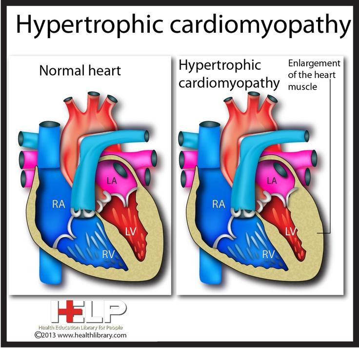 Arrhythmogenic right ventricular dysplasia