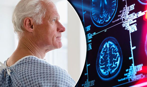 You Can See More: Dementia symptoms warning: THIS early sign of Alzheimer's linked to higher death risk