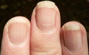 Good to know! What your fingernails say about your health.