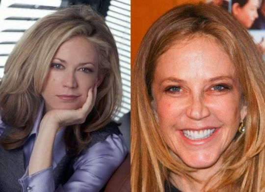 Ally Walker before and after