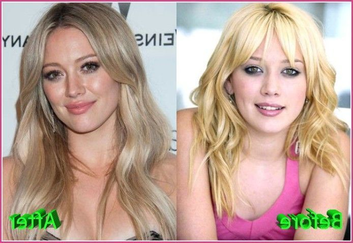 Hilary Duff Before And After Plastic Surgery – Фото база #plasticsurgery…