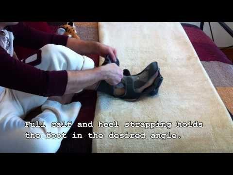 Ossur Exoform Dorsal Night Splint for Plantar Fasciitis Treatment Exercises