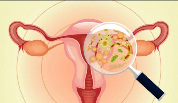 Scapa de infectiile vaginale cu doar 2 ingrediente ieftine pe care sigur le ai in bucatarie! - dr. Andrei Laslău