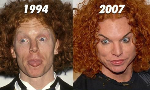 Carrot Top Plastic Surgery Before and After Facelift and Steroids ...