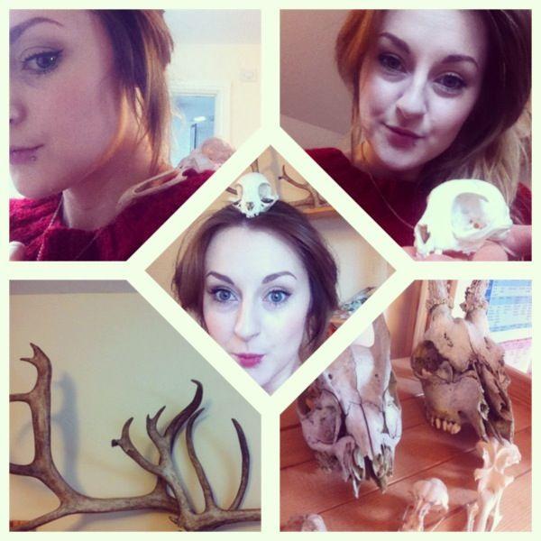 old instagram post about my bones