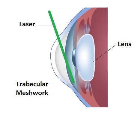 Glaucoma is a #disease condition that is the result of a number of mechanisms that produce increased pressure within the eye. The elevated eye pressure causes #damage to the eye nerve over time. Unfortunately the damage caused by glaucoma to the eye nerve is irreversible. We can treat #glaucoma only to prevent further damage to the nerve and cannot recover the loss.