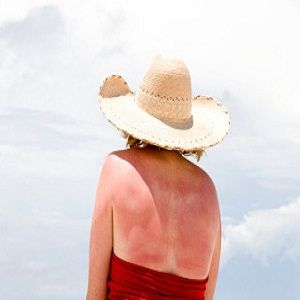 Skin Conditions Related To Sun Damage....Protect with SPF laDermique 413-786-3376