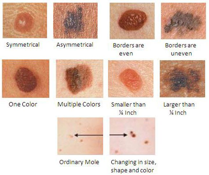 abc of skin cancer pdf