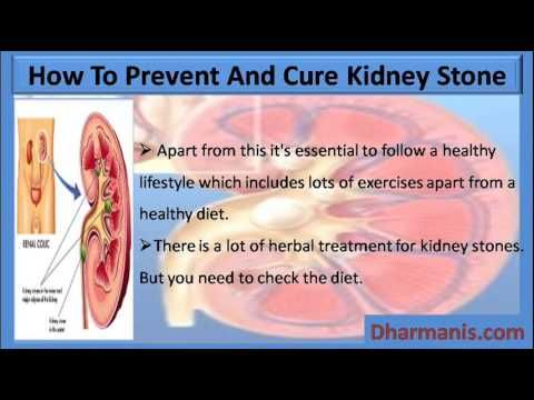 health kidney mans cure stones