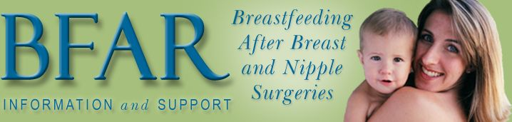 Have you had a procedure done on your breast(s) or plan on having one in the near future, but you aren't sure how it may effect your ability to breast feed? This site provides the information and support to help you make decisions and get through the rough patches.