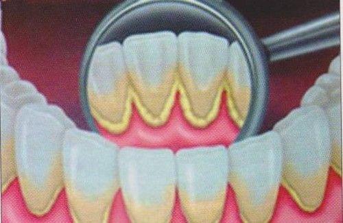 Comment éliminer le tartre présent sur vos dents efficacement ?
