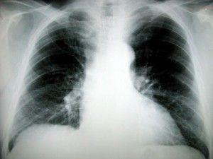 The Homestead Survival | 8 Herbs For Pneumonia