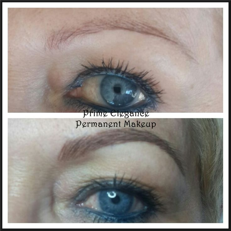 Microblading immediately after the first procedure. After the first treatment, the colour will appear darker and bolder than what is expected at the final outcome. The shape may also appear thicker than what is expected for the final outcome. This is a two stage process and with healing the colour and shape will soften and fade. A touch up is necessary to perfect the process. At the touchup, we can decide to go darker, add more hairs and perfect the shape.