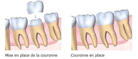 #meilleure #mutuelle pour #couronne #dentaire est un élément couvrant la partie des dents visible suite à un #carié, il peut être réalisé dans différents matériaux, les plus courants étant la #céramique, plus #esthétique, et les #alliages #métalliques.vous conseillez et les plus informations sur : http://www.devis-mutuelle-dentaire.fr/mutuelle-pour-couronne-dentaire.aspx