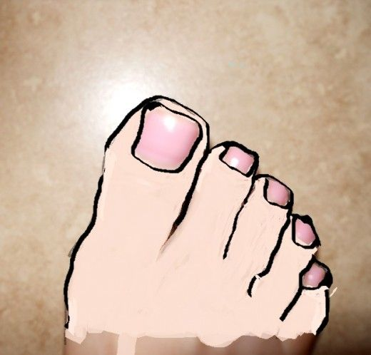 I had an interesting experience with pain in my big toes.   The final correct diagnosis was very surprising and had a very simple fix.