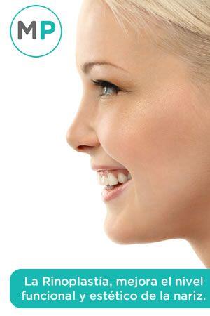 Rinoplastía, la opción ideal para mejorar la apariencia y funcionalidad de la nariz.http://www.medicoplastica.com/cirugia-plastica/orejas-y-nariz/rinoplastia