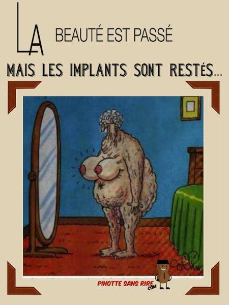 Implants mammaire