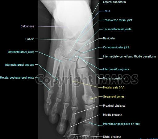 8 best foot x ray images on pinterest human anatomy anatomy radiographical anatomy of the hip thigh knee leg ankle and foot on conventional radiograms of the lower limb ccuart Images