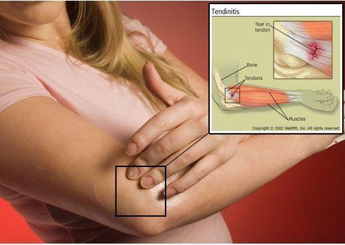 Como aliviar os sintomas da tendinite