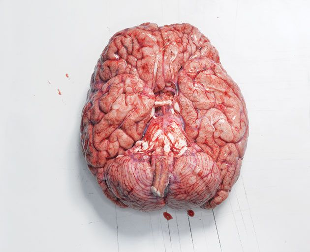 """The first time I held a human brain in Anatomy Lab I was completely speechless. I looked at my classmates expecting a similar reaction and they looked back at me confused like…""""dude let's start identifying the structures."""" I had to take a step back and let it process…in my hands was someone's entire life. From start to finish, every memory, every emotion, every bodily control…was right there in my hands."""