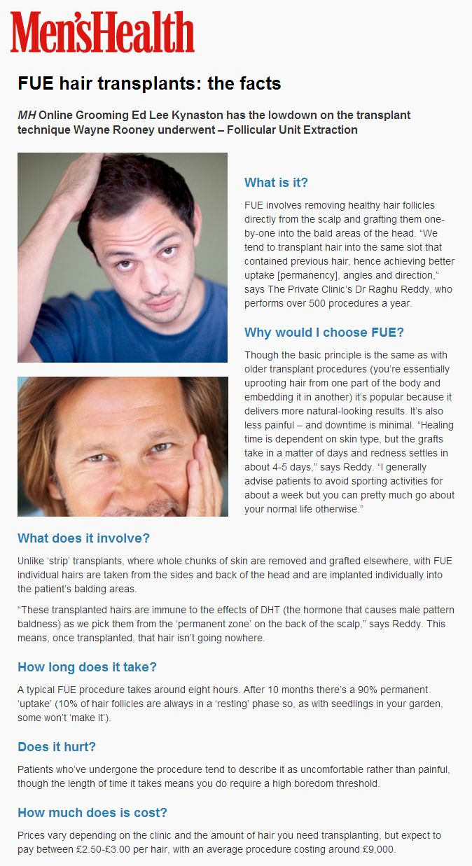 FUE hair transplants: the facts