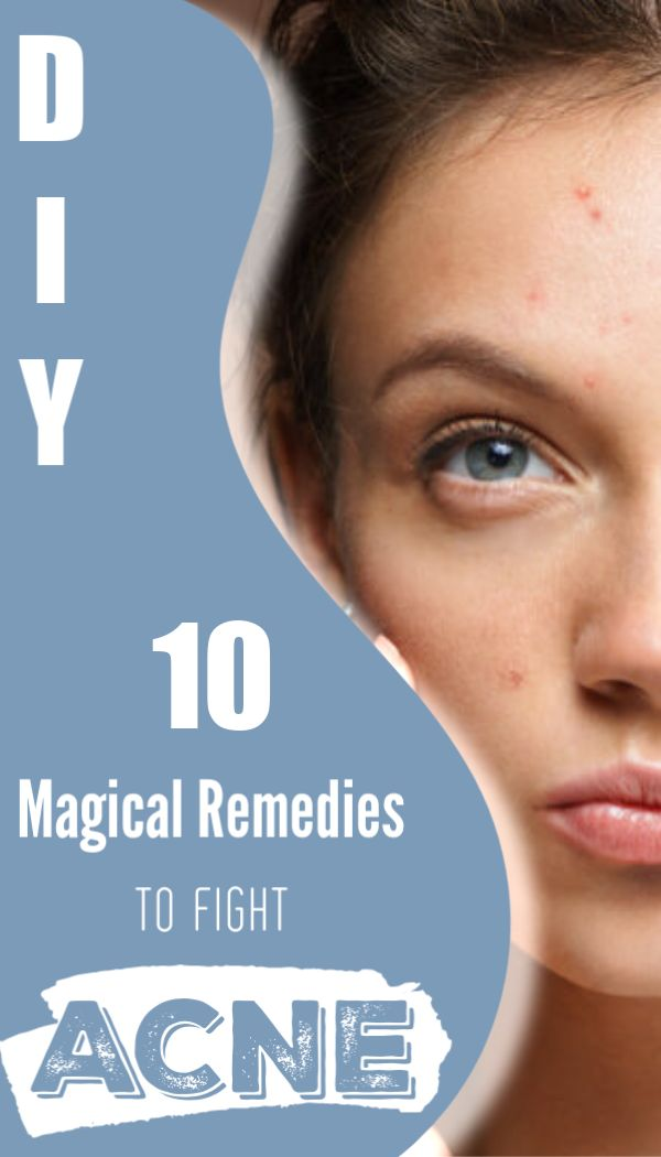 Magical remedies to fight acne and pimples. Get rid of them in just few hours