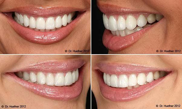 perfect smile veneers россия