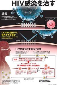 HIV感染を治す ゲノム編集で薬不要を目指す:朝日新聞デジタル