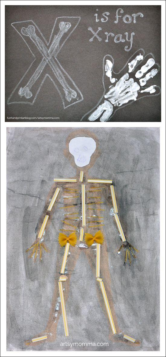 Letter X Craft - Handprint X-ray