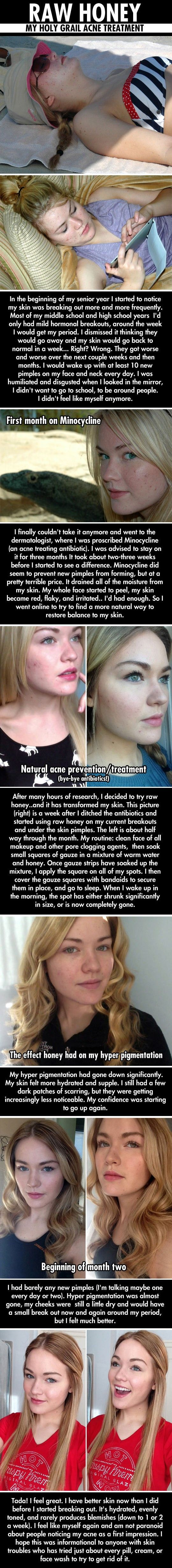 http://acne-cure.digimkts.com/  You have to see to believe it  forehead acne .   http://revitol.amazitter.com/  I can do this myself now