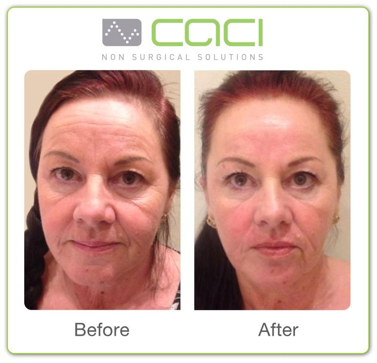 Top class results ! Well done ! #caci
