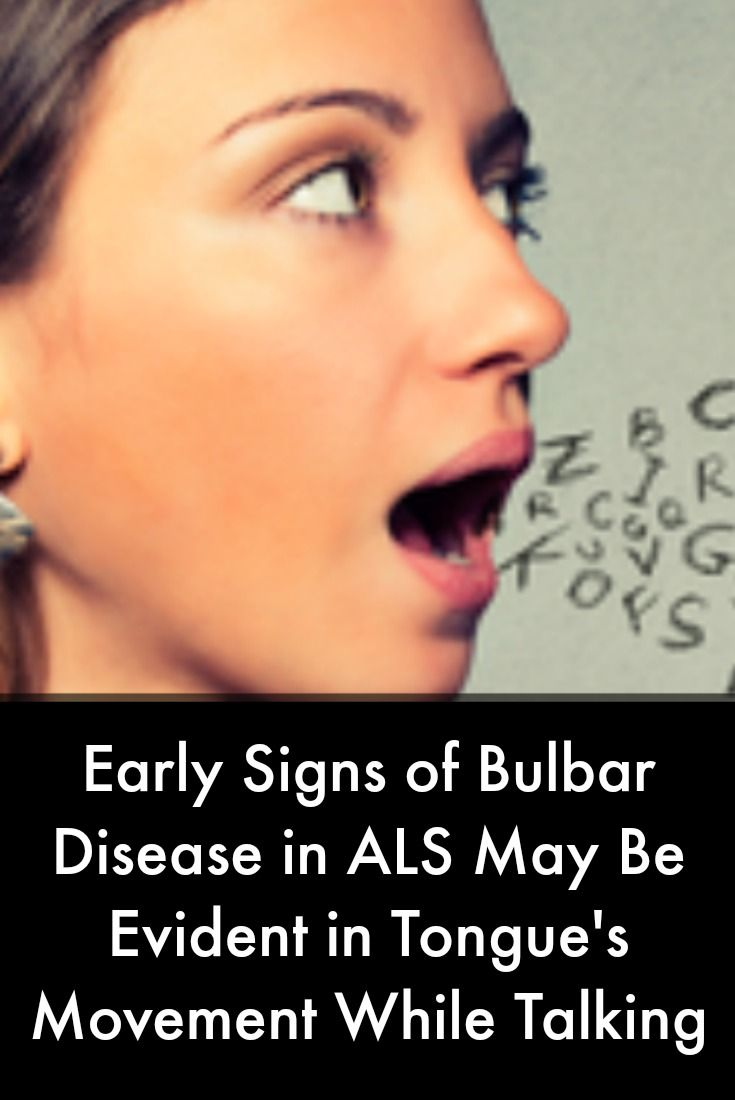 16 best als news today images on pinterest news today for What are the first signs of motor neuron disease