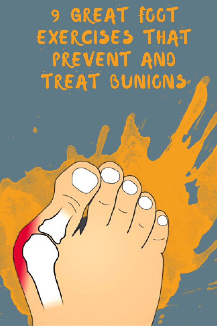 A bunion is formed when the tissue of the big toe becomes swollen forming a big bony bump on the flank of the foot. Often, there is also thickening of the skin and soft tissue next to the affected joint. Bunions can be intensely painful and can even lead to arthritis.
