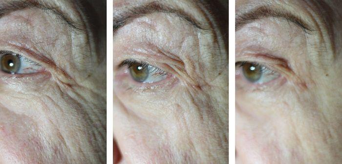 Eyesential vorher nachher