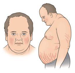 Conheça as causas e opções de tratamento para a Síndrome de Cushing