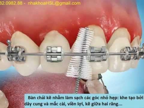 Niềng răng ( Nắn chỉnh răng ) - Lưu ý khi nắn chỉnh - Chăm sóc hàm nắn c...