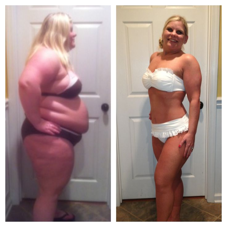 gastric banding surgery for weight loss
