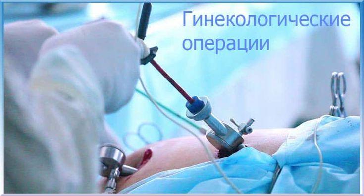 Гинекологические операции - гинекологическая хирургия. Многопрофильные медицинские центры проводят экстренные и плановые операции.